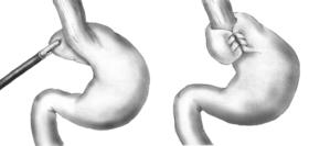 Foodpipe tightening Nissen fundoplication