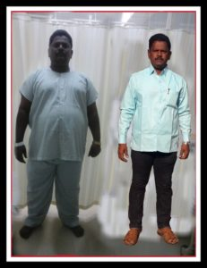 Mr B V Awre Before and After