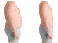 Bariatric Treatment in Pune