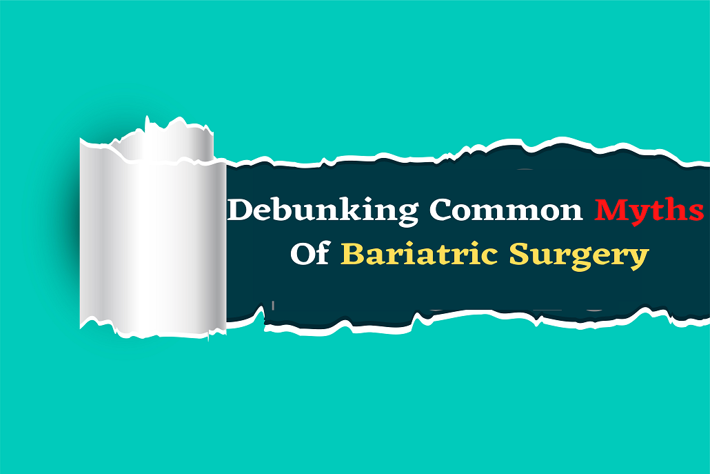 Debunking Common Myths Of Bariatric Surgery